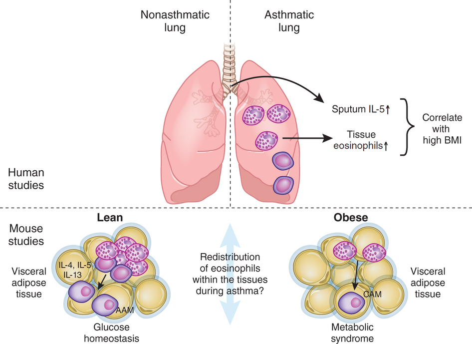obesity and asthma The allergy and obesity link when exposed to these kinds of triggers, people who suffer from allergic asthma produce too much ige obesity and allergy in adults although a large number of people develop asthma in childhood.